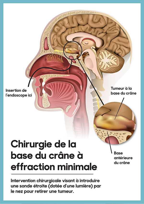 La Technique Du Microscope Examine Linterieur Du Cerveau Sans Chirurgie